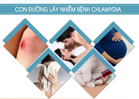 Chlamydia do nhiều nguyên nhân gây ra