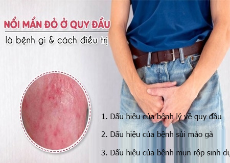 Rãnh quy đầu nổi mẩn đỏ là dấu hiệu của nhiều bệnh nguy hiểm