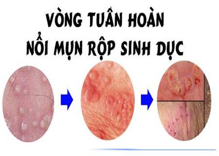 Triệu chứng mụn rộp sinh dục qua các giai đoạn