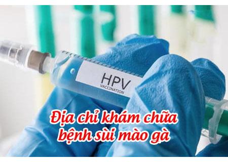 Điều trị HPV gây sùi mào gà tại phòng khám Kinh Đô