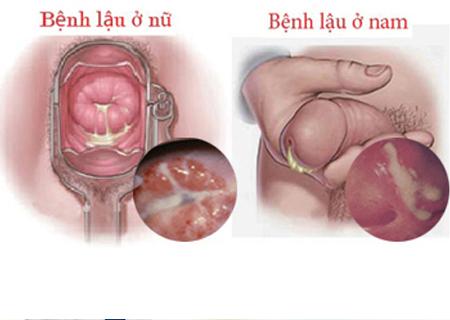Bệnh lậu dễ dàng lây nhiễm qua quan hệ tình dục không an toàn