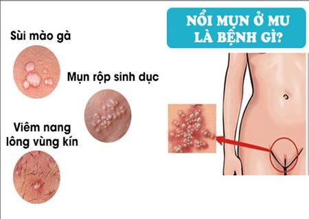 Có nhiều nguyên nhân nổi mụn lông mu mà người bệnh cần lưu ý