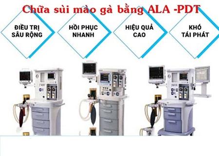 Chữa sùi mào gà bằng phương pháp ALA-PDT mang lại hiệu quả cao