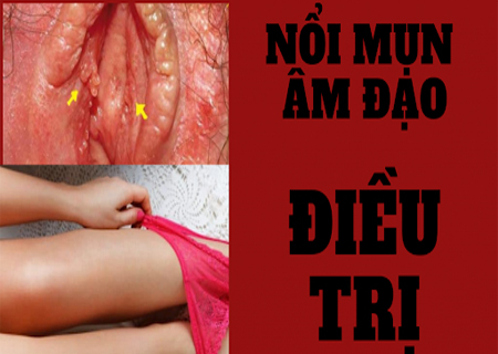 Nổi nốt sùi trắng trong âm đạo là dấu hiệu của nhiều bệnh