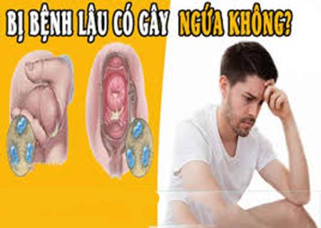 Bệnh lậu có thể gây ngứa cho người bệnh