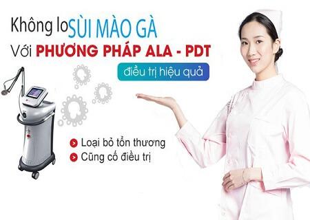 Chữa sùi mào gà âm hộ bằng phương pháp ALA-PDT