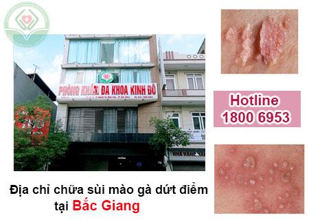 Địa chỉ chữa sùi mào gà ở Bắc Giang uy tín