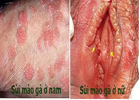 Hình dạng sùi mào gà tại bộ phận sinh dục