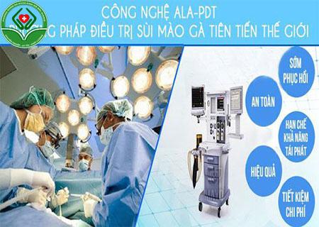 Phương pháp ALA-PDT chữa bệnh sùi mào gà an toàn