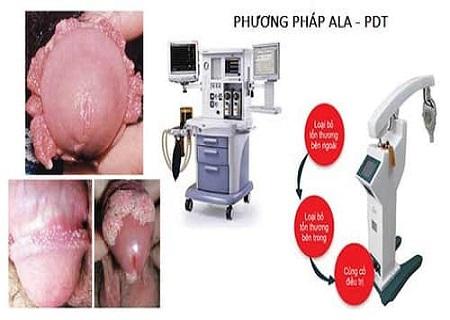 P;hương pháp ALA-PDT điều trị sùi mào gà hiệu quả