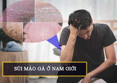 Bệnh sùi mào gà ở nam giới