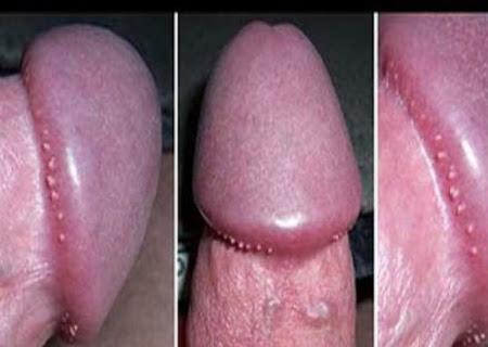 Chuỗi hạt ngọc dương vật là biểu hiện bệnh lành tính