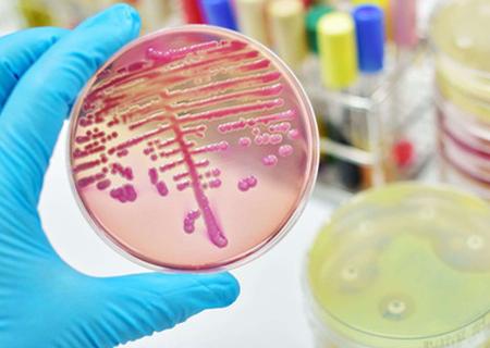Hình ảnh nấm Candida mãn tính được phóng đại