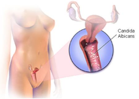 Nấm Candida ở nữ giới gây nên nhiều bệnh nguy hiểm