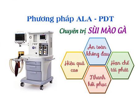 ALA-PDT chữa Mụn vùng kín do sùi mào gà hiệu quả
