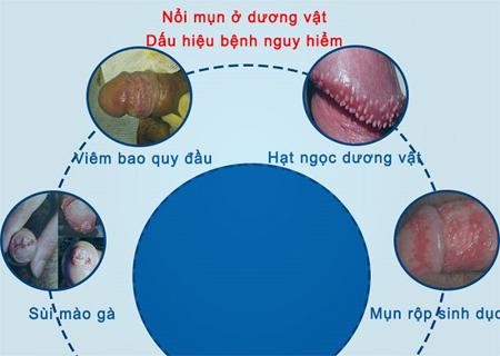 Nổi mụn nhỏ li ti là dấu hiệu của nhiều căn bệnh nguy hiểm