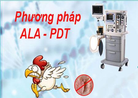 Chữa mụn cóc vùng kín hiệu quả bằng phương pháp ALA - PDT